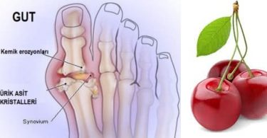 Gut Hastalığı Nedir? Belirtileri, Nedenleri, Tanı ve Tedavi