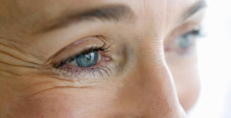 Göz altı kırışıklıklarına doğal çözümler
