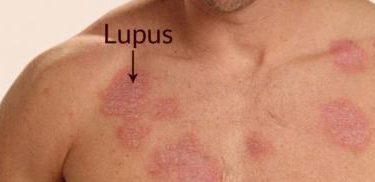 Lupus Hastalığı Nedir? Nedenleri, Tanı ve Tedavisi