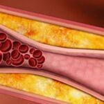 Kolesterol Nedir? Neden Zararlıdır?